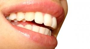 dientes lindos
