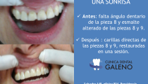 Carilla Dental