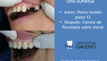 Corona dental pieza 12