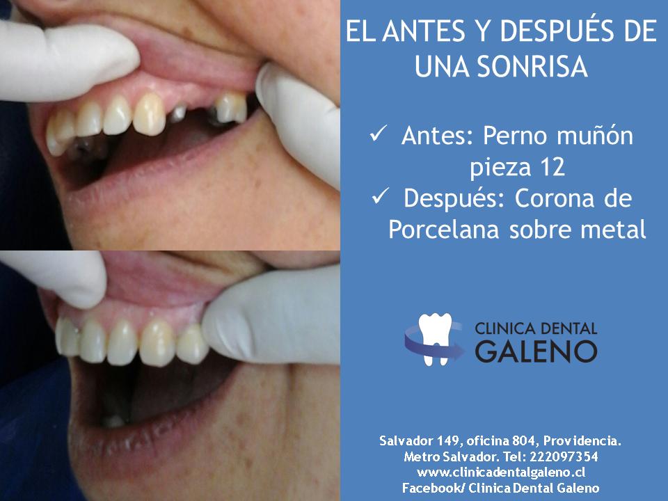 Corona dental pieza 12 clinica dental galeno - Dibujos unas de porcelana ...