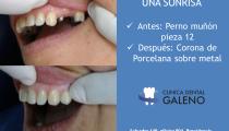 Corona dental pieza 12